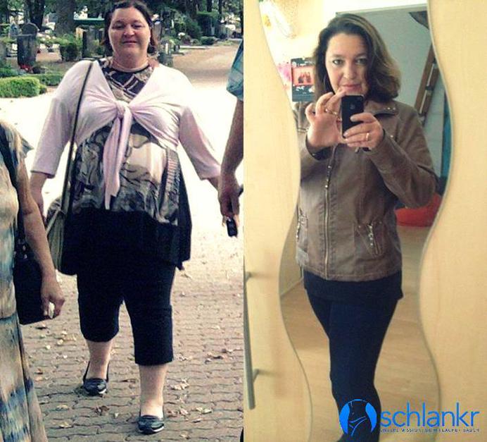 vor und nach dem abnehmen